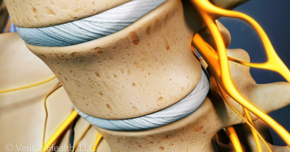 lumbar-spinal-disc
