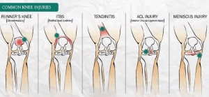 waverton-physio-knee-injuries_orig
